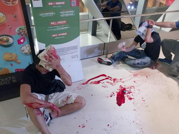 The National: Two men in black shirts cover their heads as they bleed after being attacked by thugs in white shirts at a subway station in New Territory in Hong Kong