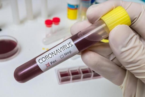 Coronavirus: Number of deaths in Scotland rises to 16