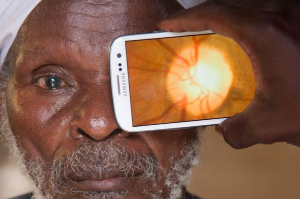 Smartphone adaptor kit could help stop blindness