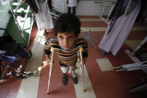 A young boy who lost his leg in the Yemen war uses a prosthetic limb at a government-run facility in Saana, Yemen
