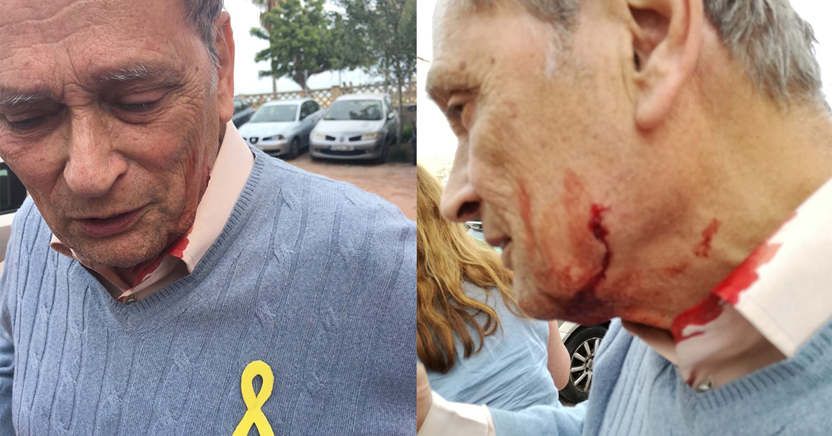 20 balaclava-clad unionists involved were in a clash with pro-independence supporters, leaving five injured – including this 82-year-old man, known only as John. Photo credit: @PrimaveraCat_